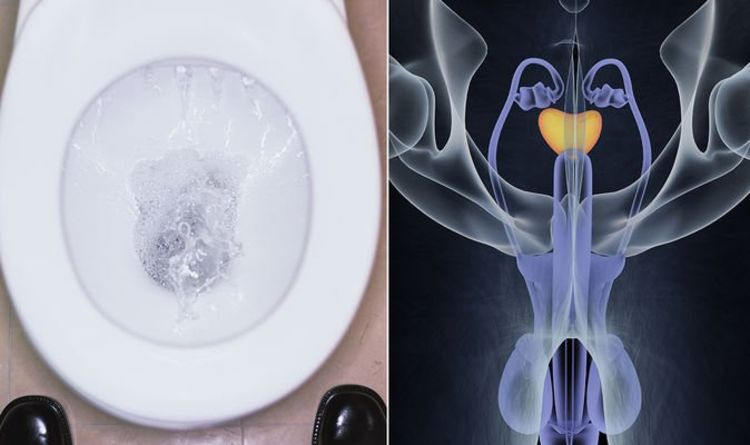 Prostate cancer symptoms: The three urine colours to avoid - it could be something serious - Express
