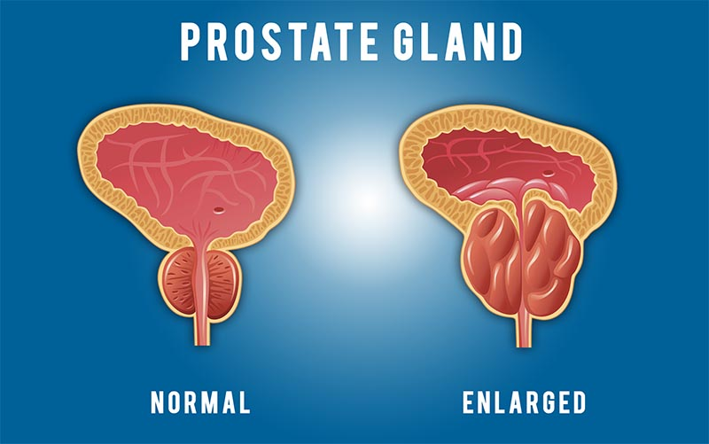 Enlarged Prostate – Causes, Symptoms and How to cope - Afternoon Voice