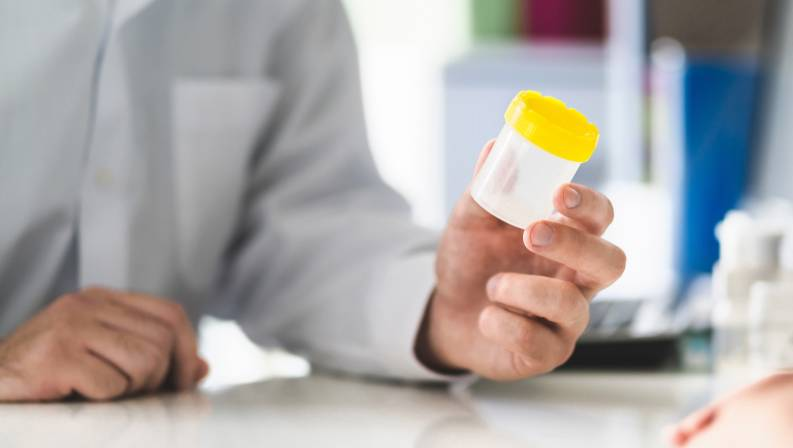 New urine test a breakthrough for prostate cancer researchers