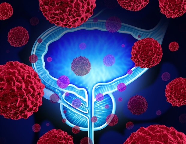 Targeted screening effective in reducing prostate cancer deaths - News-Medical.net