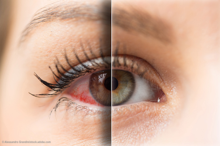 New for 2020 and beyond: Dry eye disease agents in pipeline