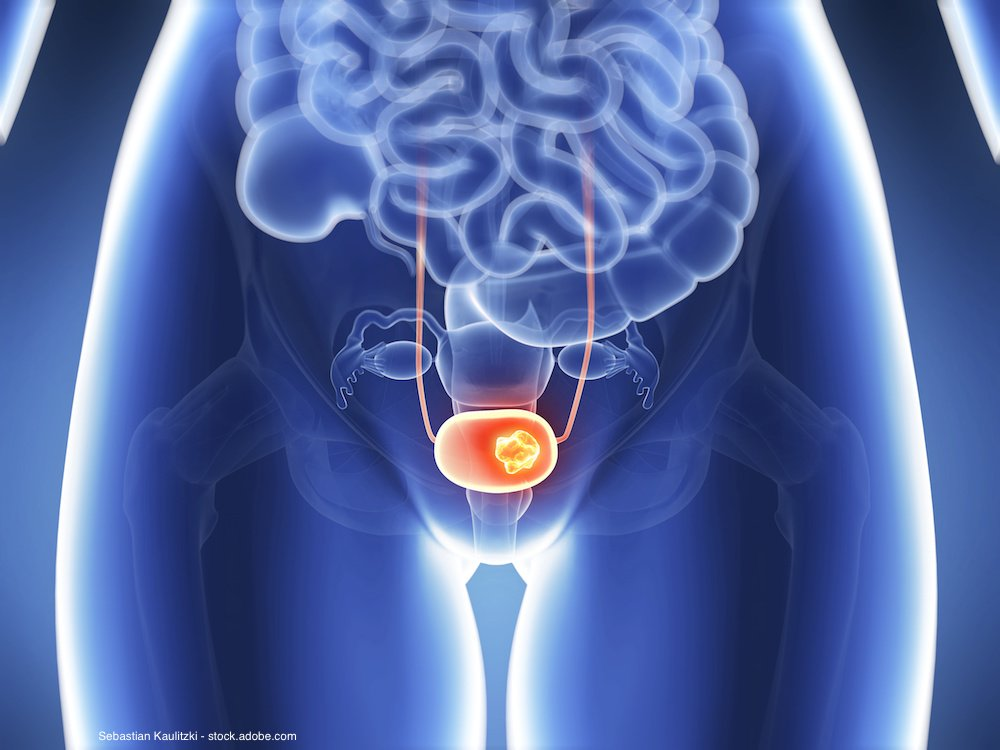 How has FDA label change affected treatment of advanced bladder Ca? - Urology Times